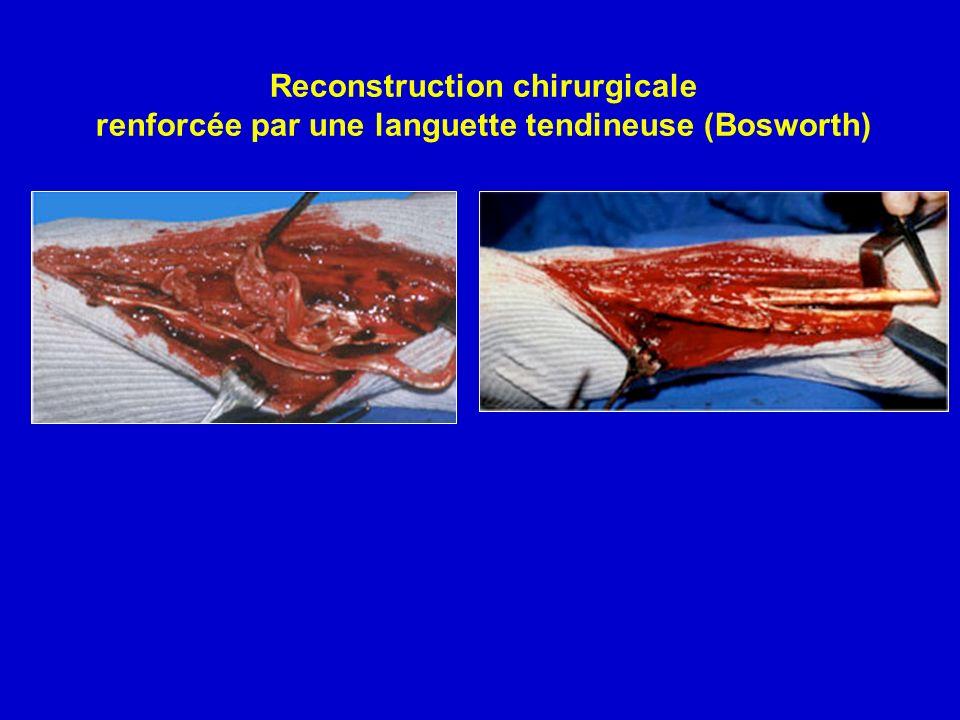 Reconstruction chirurgicale renforcée par une languette tendineuse (Bosworth)