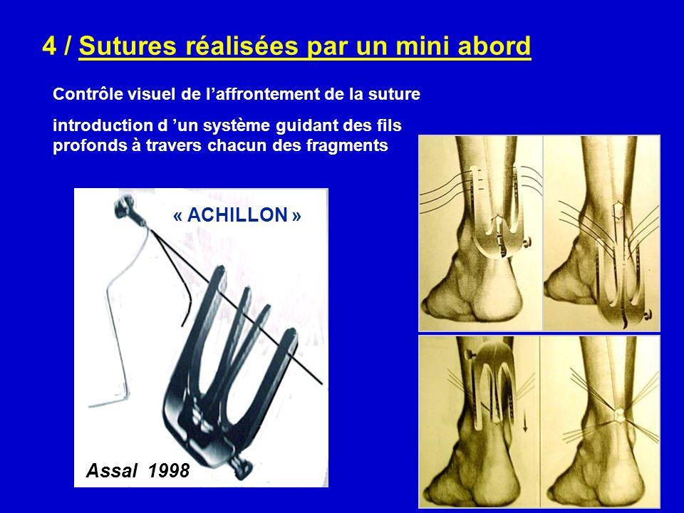4 / Sutures réalisées par un mini abord