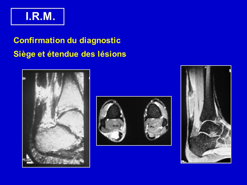 I.R.M. Confirmation du diagnostic Siège et étendue des lésions