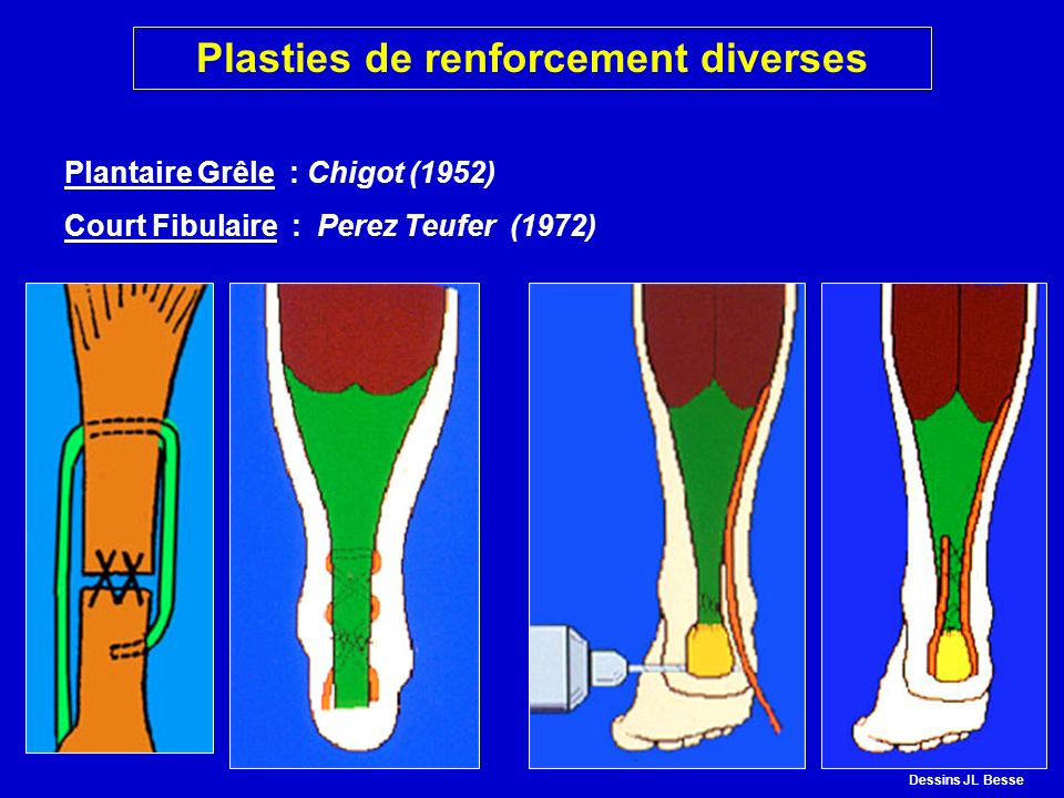 Plasties de renforcement diverses