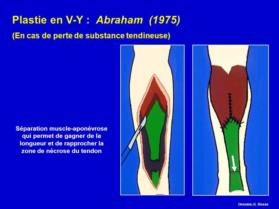 Plastie en V-Y : Abraham (1975)