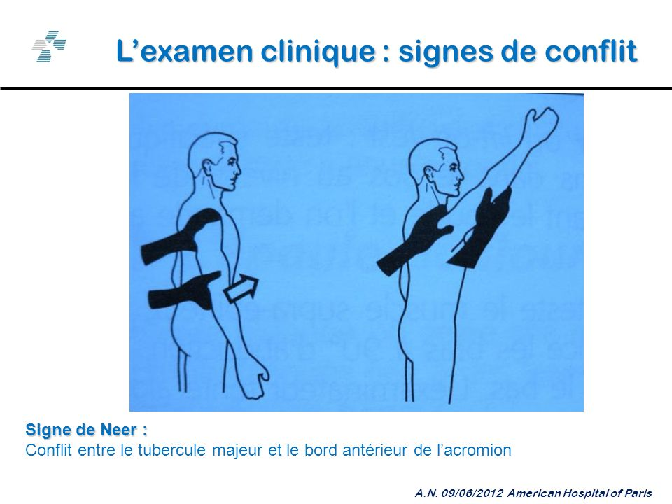 L'examen clinique : signes de conflit