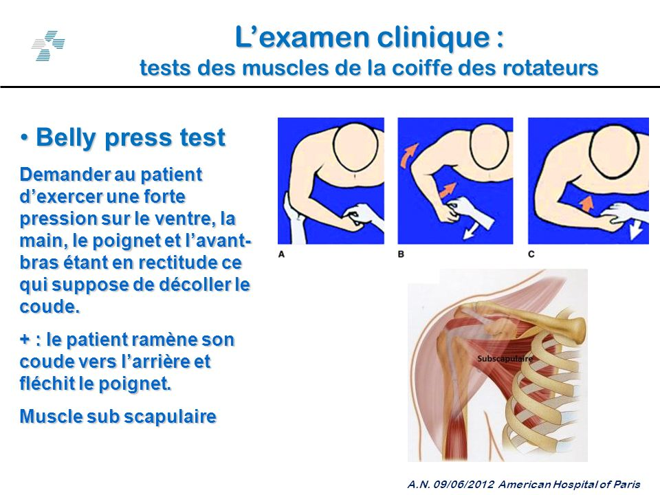 L'examen clinique : Belly press test