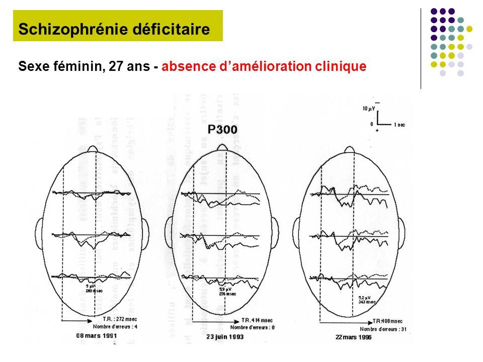 Schizophrénie déficitaire