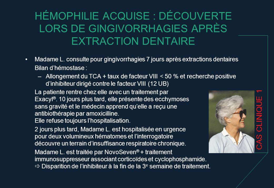 HÉMOPHILIE ACQUISE : DÉCOUVERTE LORS DE GINGIVORRHAGIES APRÈS EXTRACTION DENTAIRE