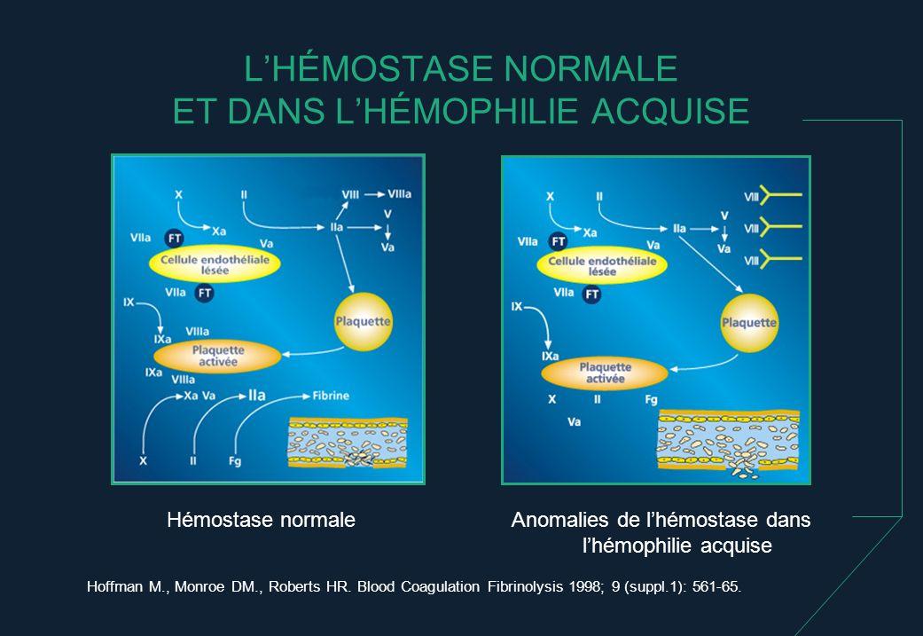 L'HÉMOSTASE NORMALE ET DANS L'HÉMOPHILIE ACQUISE