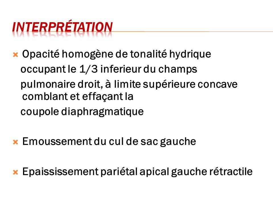 interprétation Opacité homogène de tonalité hydrique