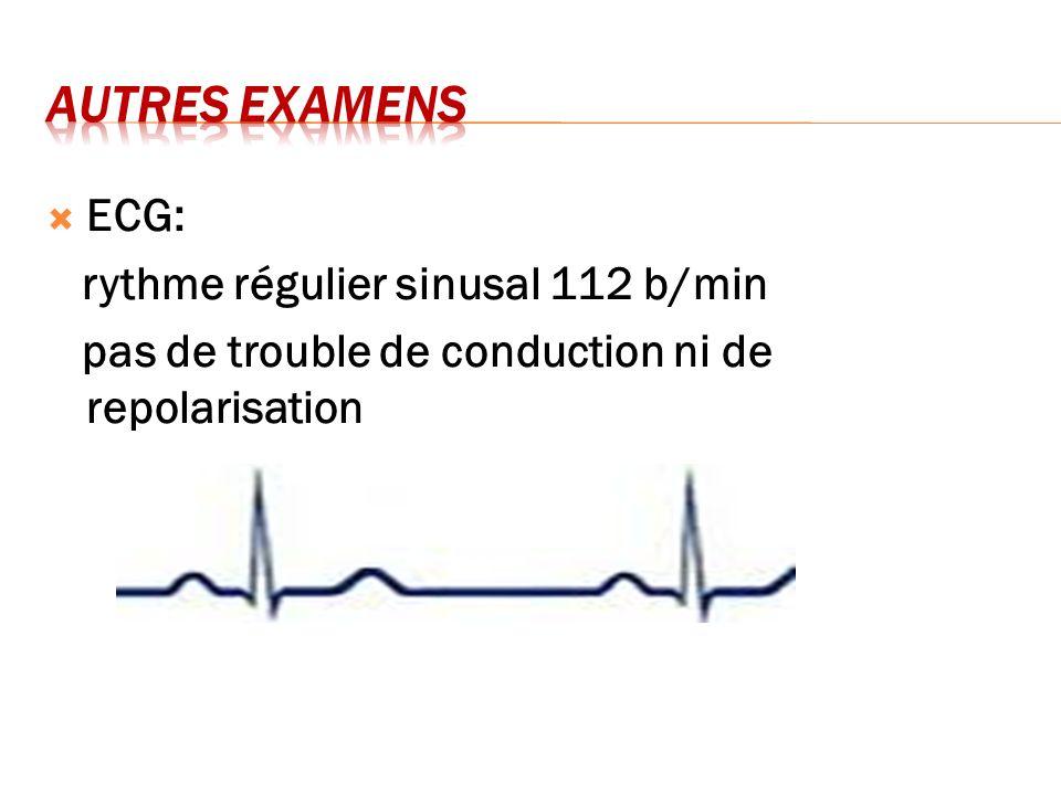 AUTRES EXAMENS ECG: rythme régulier sinusal 112 b/min