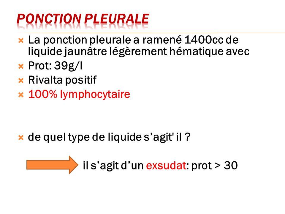 Ponction pleurale La ponction pleurale a ramené 1400cc de liquide jaunâtre légèrement hématique avec.