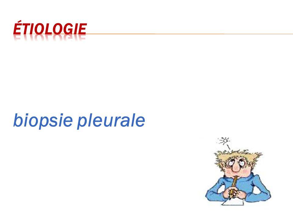 étiologie biopsie pleurale