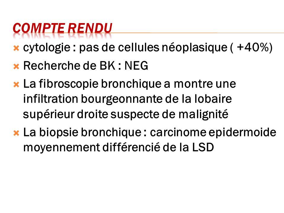 Compte rendu cytologie : pas de cellules néoplasique ( +40%)