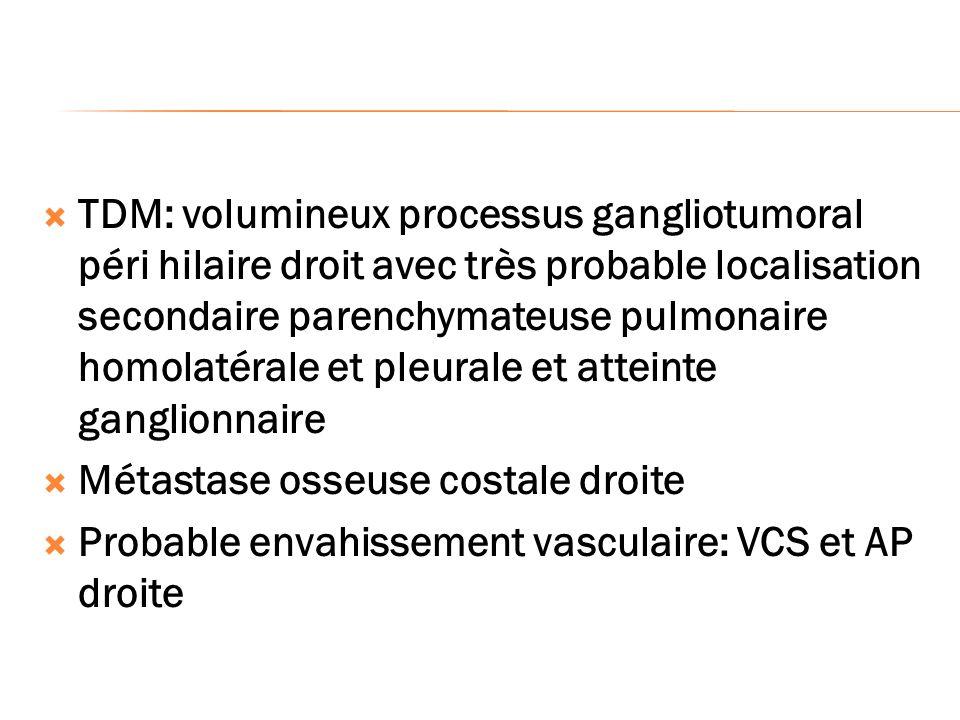 TDM: volumineux processus gangliotumoral péri hilaire droit avec très probable localisation secondaire parenchymateuse pulmonaire homolatérale et pleurale et atteinte ganglionnaire