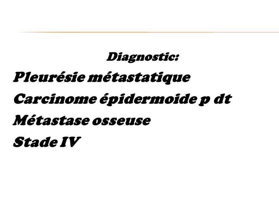 Pleurésie métastatique Carcinome épidermoide p dt Métastase osseuse