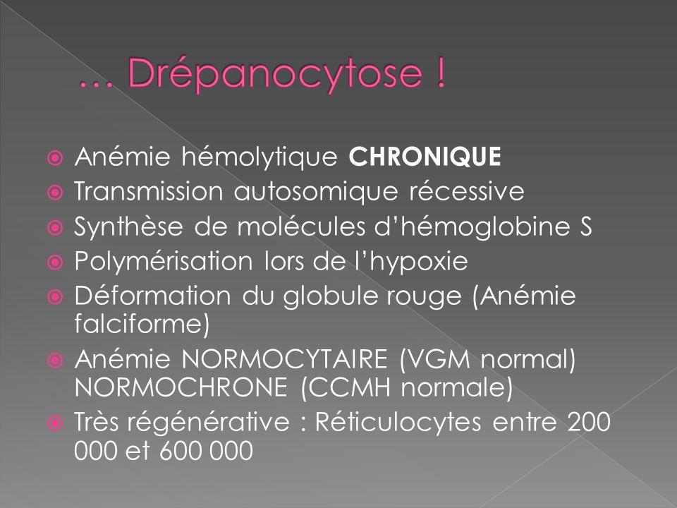 … Drépanocytose ! Anémie hémolytique CHRONIQUE
