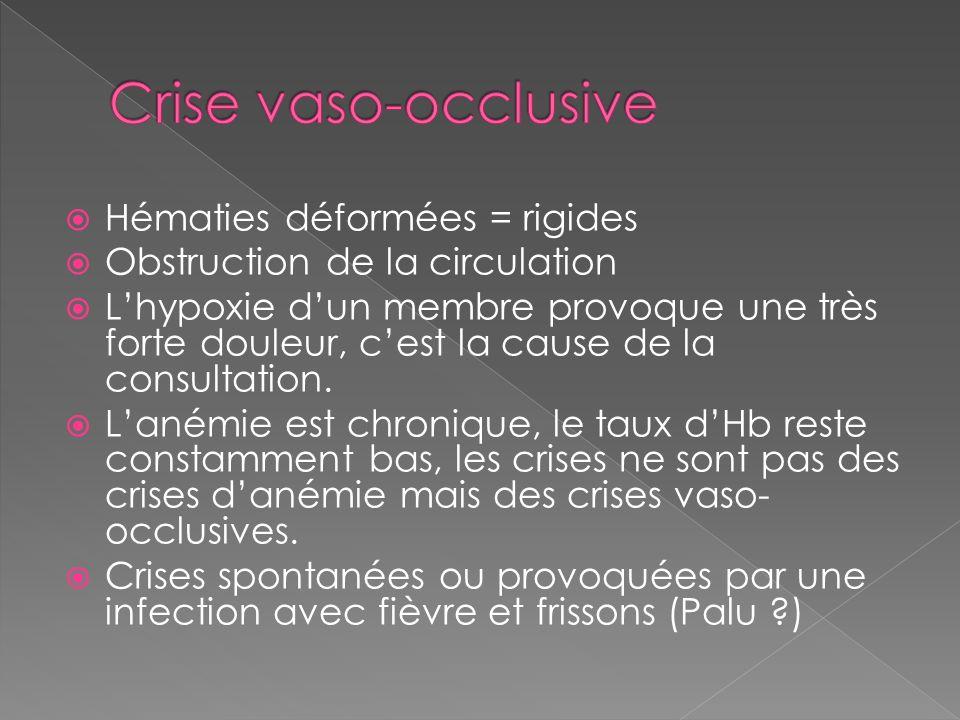 Crise vaso-occlusive Hématies déformées = rigides