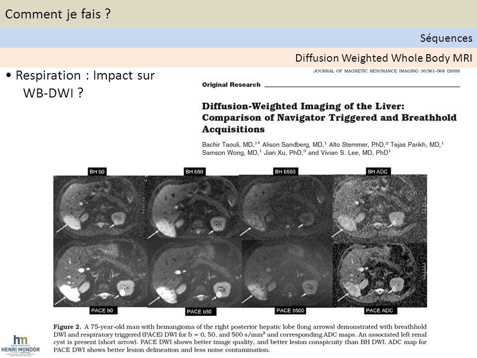 • Respiration : Impact sur WB-DWI