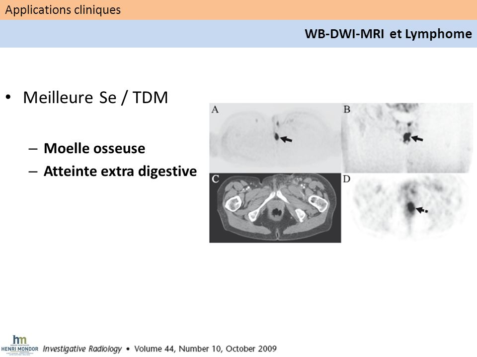 Meilleure Se / TDM Moelle osseuse Atteinte extra digestive