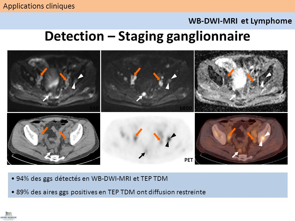 Detection – Staging ganglionnaire