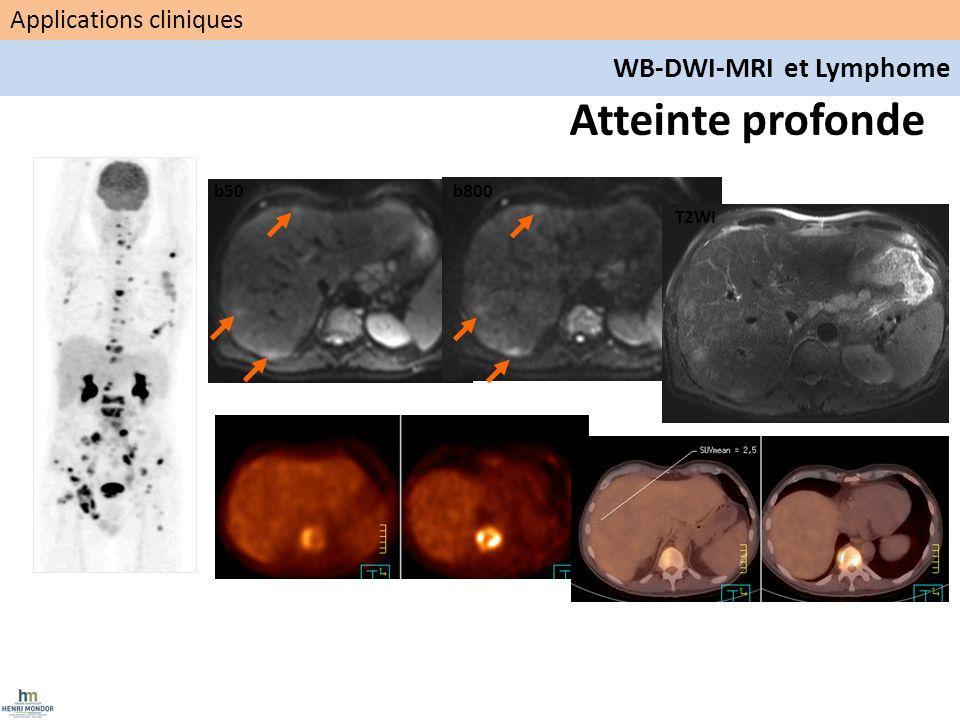 Atteinte profonde WB-DWI-MRI et Lymphome Applications cliniques b50