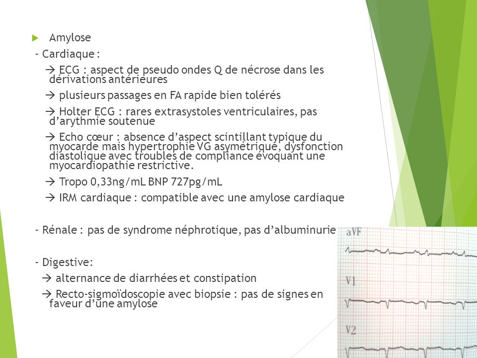 Amylose - Cardiaque :  ECG : aspect de pseudo ondes Q de nécrose dans les dérivations antérieures.