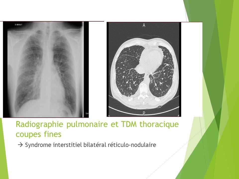 Radiographie pulmonaire et TDM thoracique coupes fines
