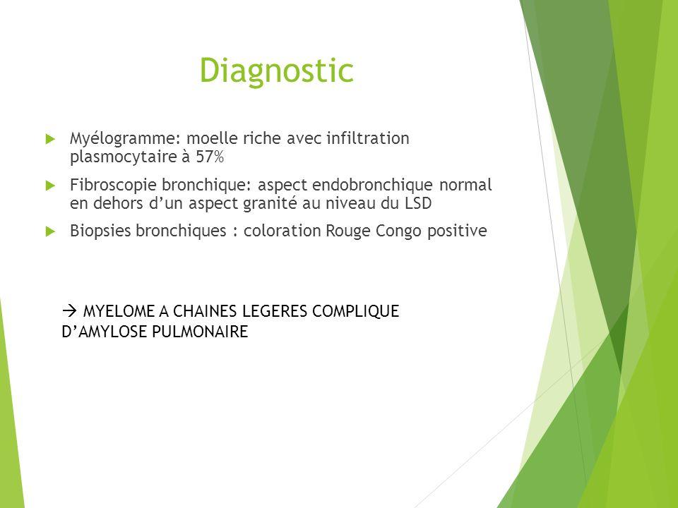 Diagnostic Myélogramme: moelle riche avec infiltration plasmocytaire à 57%