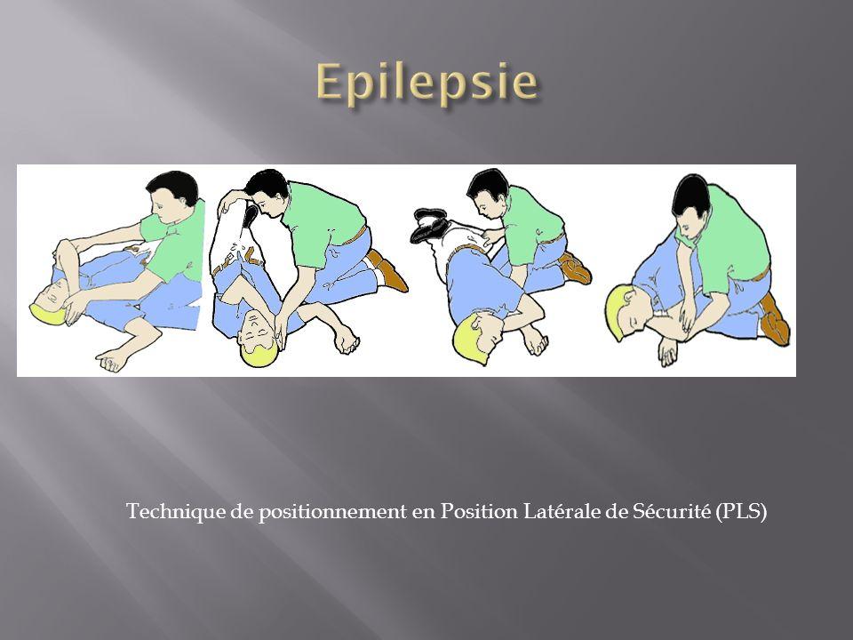 Technique de positionnement en Position Latérale de Sécurité (PLS)