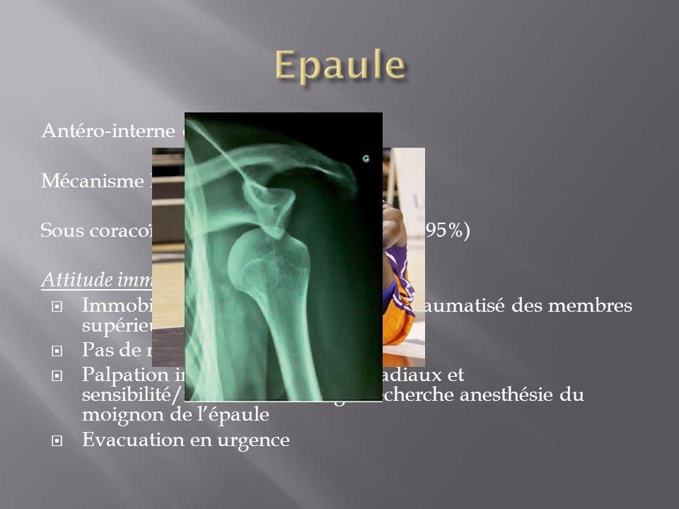 Epaule Antéro-interne ou postérieure