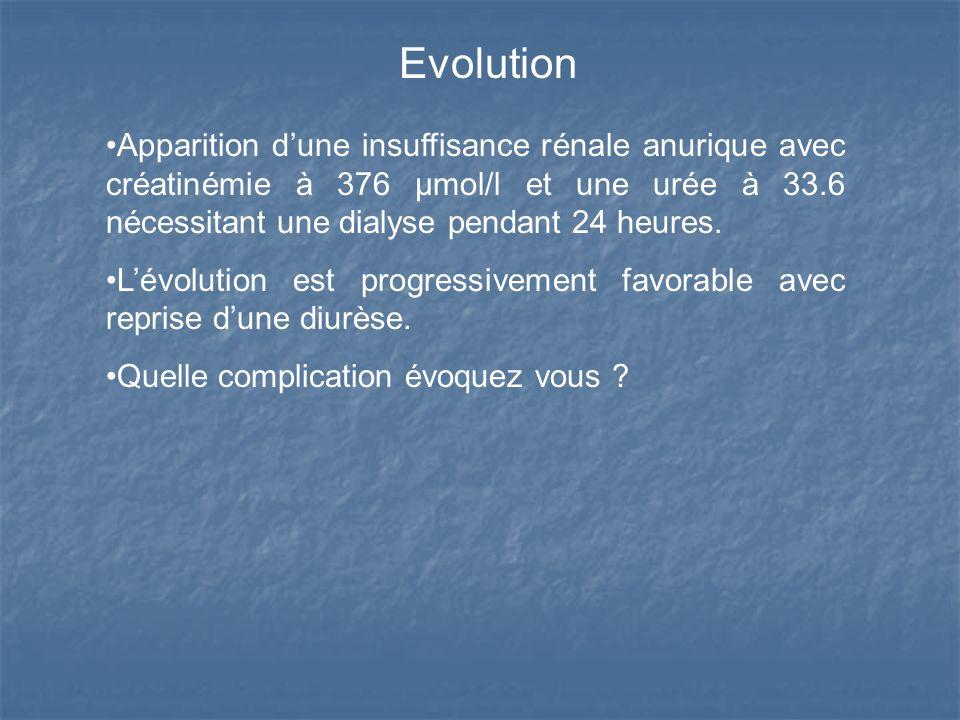 Evolution Apparition d'une insuffisance rénale anurique avec créatinémie à 376 µmol/l et une urée à 33.6 nécessitant une dialyse pendant 24 heures.