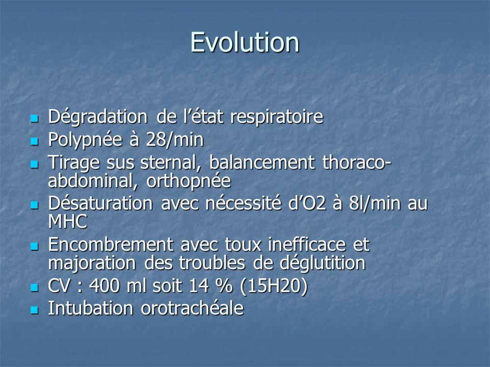 Evolution Dégradation de l'état respiratoire Polypnée à 28/min