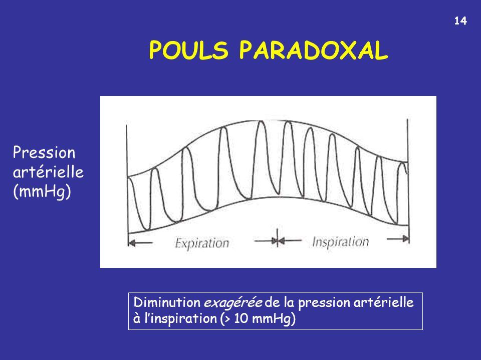 POULS PARADOXAL Pression artérielle (mmHg)