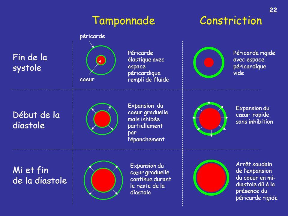 Tamponnade Constriction Fin de la systole Début de la diastole