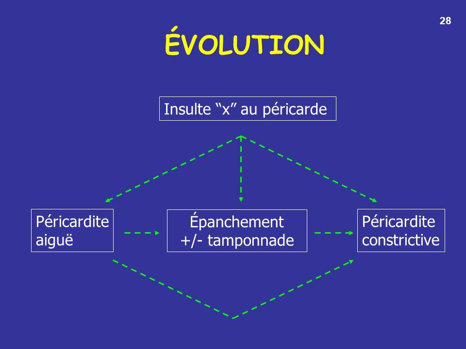 ÉVOLUTION Insulte x au péricarde Péricardite aiguë Épanchement