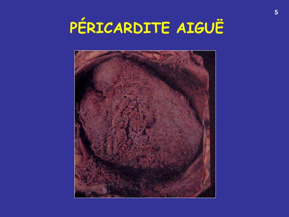 5 PÉRICARDITE AIGUË