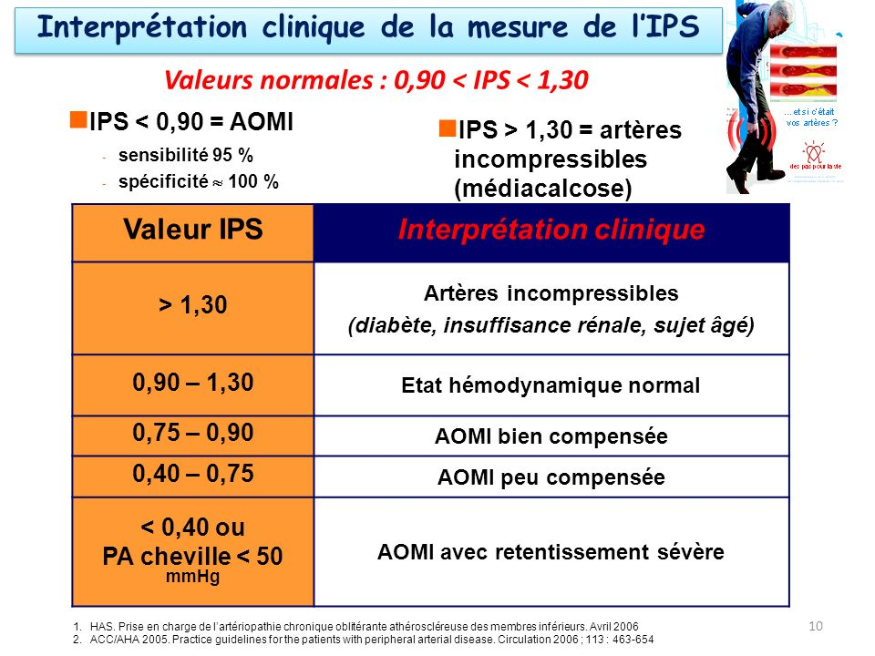Interprétation clinique de la mesure de l'IPS