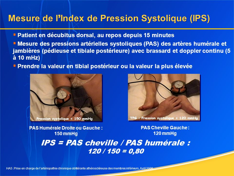 Mesure de l'Index de Pression Systolique (IPS)