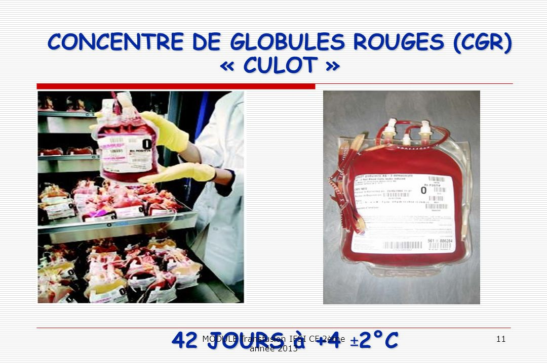 CONCENTRE DE GLOBULES ROUGES (CGR) « CULOT »