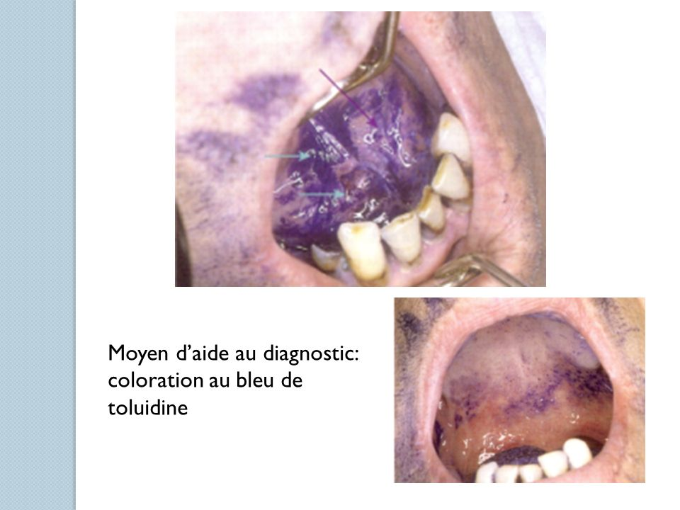 Moyen d'aide au diagnostic: coloration au bleu de toluidine