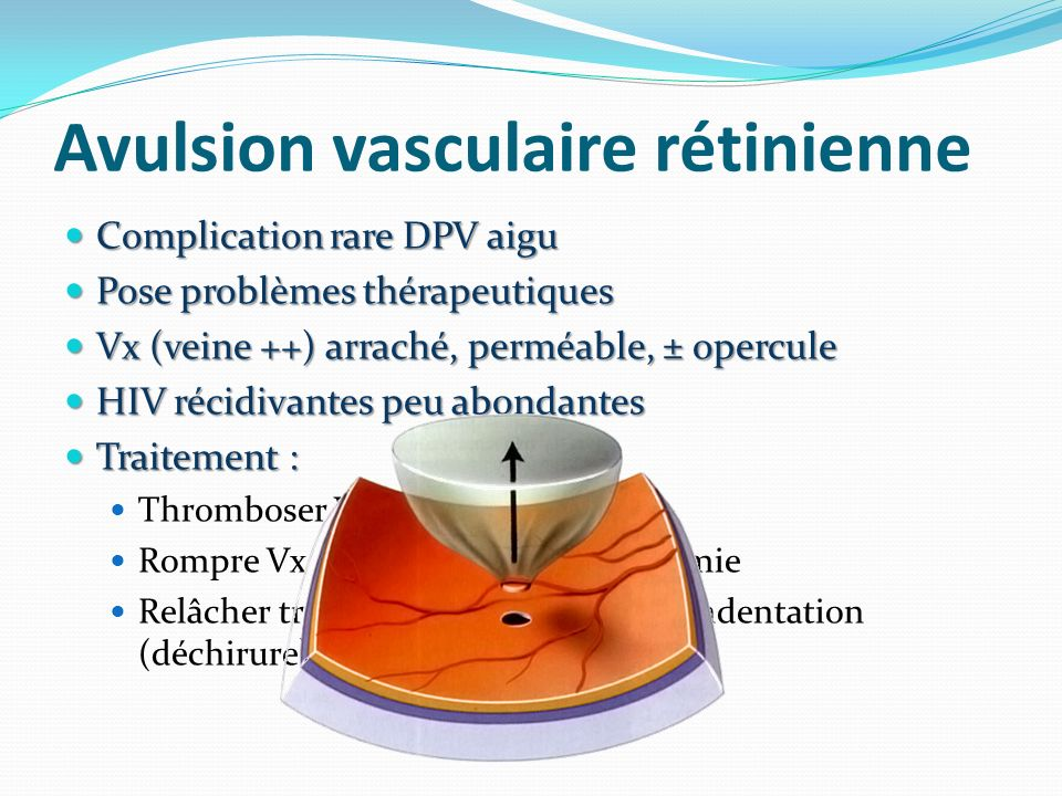Avulsion vasculaire rétinienne