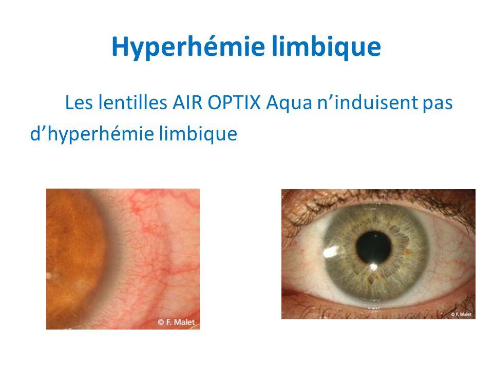 Hyperhémie limbique Les lentilles AIR OPTIX Aqua n'induisent pas