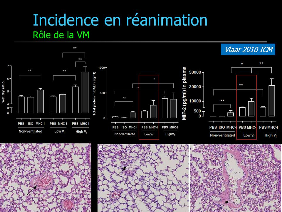 Incidence en réanimation Rôle de la VM