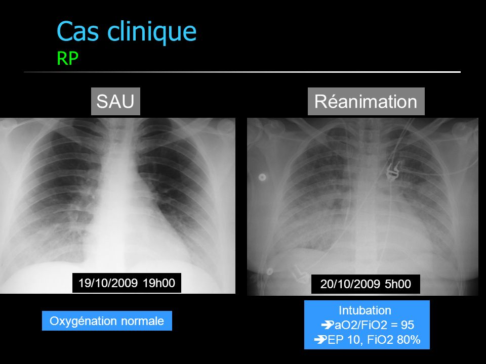 Cas clinique RP SAU Réanimation 19/10/2009 19h00 20/10/2009 5h00