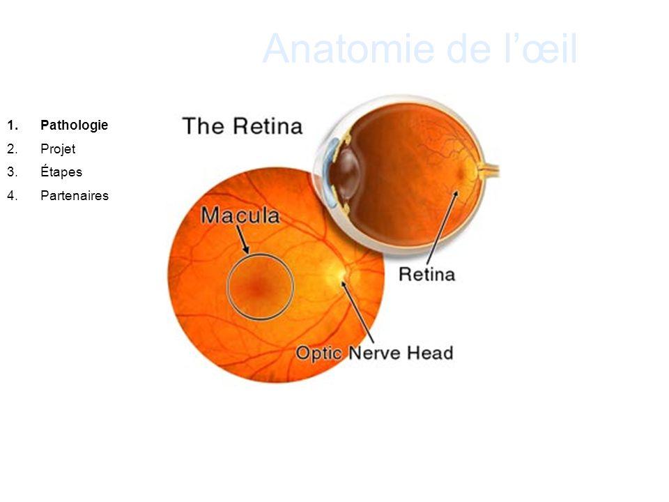 Anatomie de l'œil Pathologie Projet Étapes Partenaires . 20