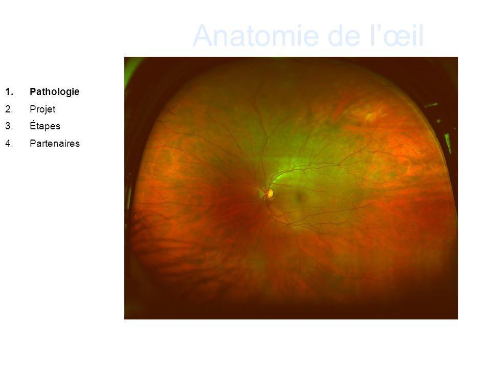 Anatomie de l'œil Pathologie Projet Étapes Partenaires . 21