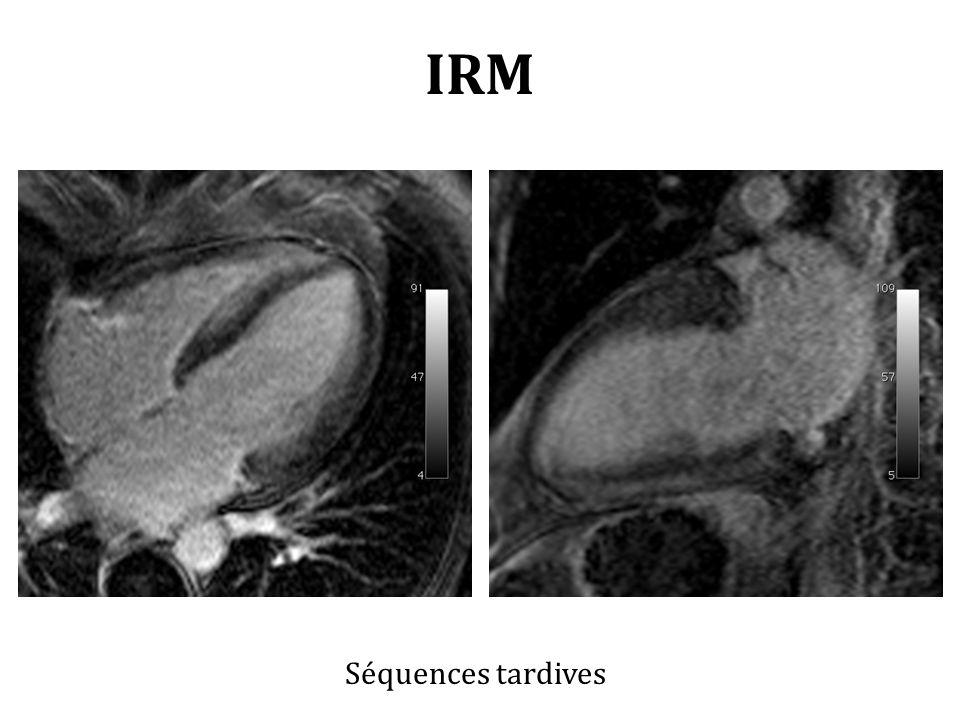 IRM Séquences tardives
