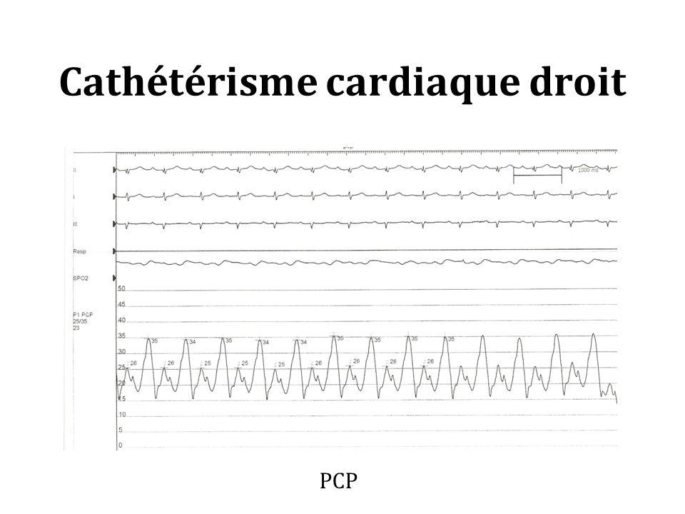 Cathétérisme cardiaque droit