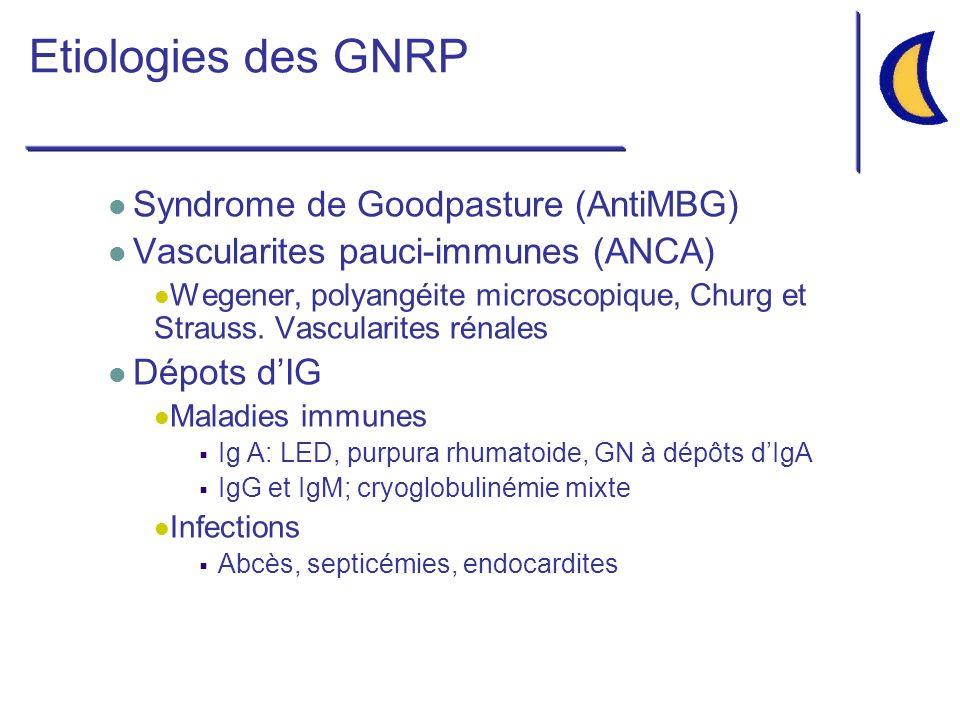 Etiologies des GNRP Syndrome de Goodpasture (AntiMBG)
