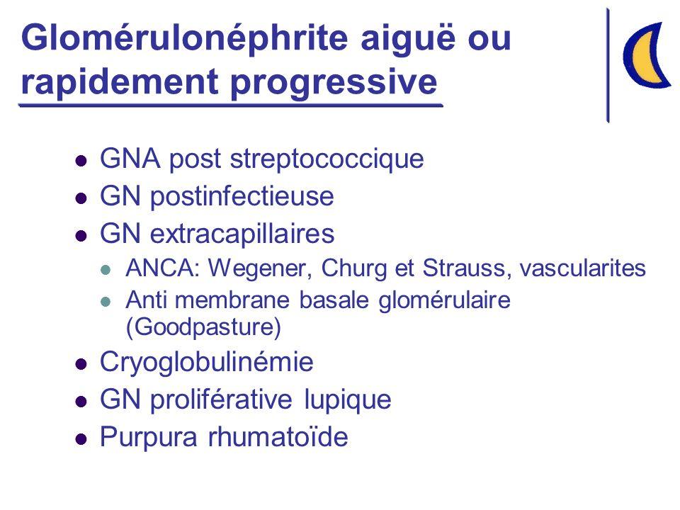 Glomérulonéphrite aiguë ou rapidement progressive
