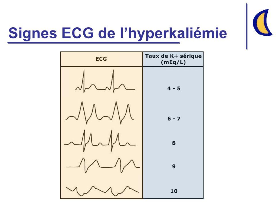 Signes ECG de l'hyperkaliémie