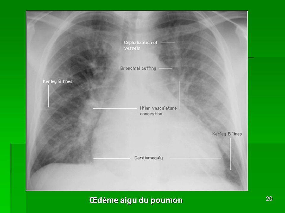 ronchi et sibilants: BPCO ± décompensation aigue emphysème Asthme